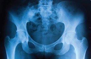 X-Ray of the Hips